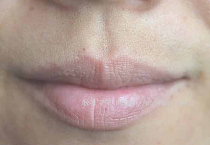 女性鼻下ヒゲ
