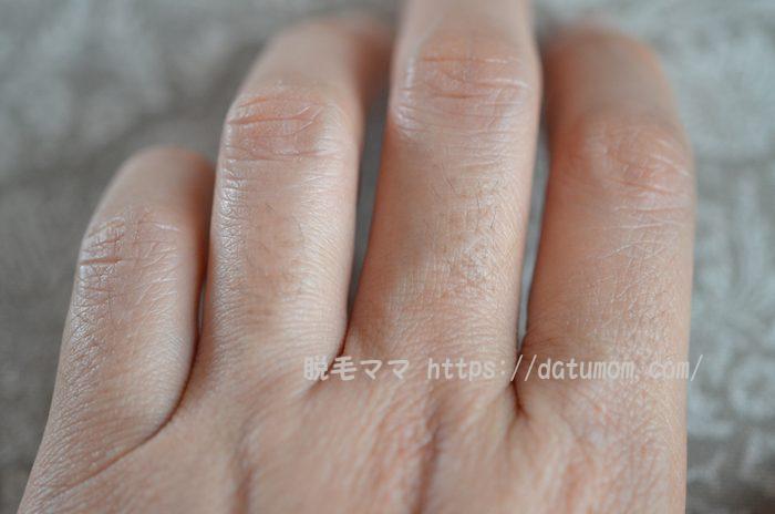 左手の指毛(使用前)