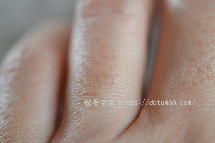左手の指毛アップ