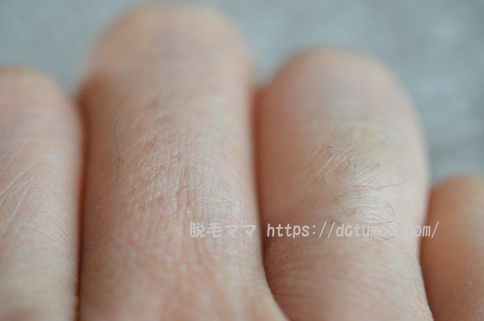 右手の指毛アップ