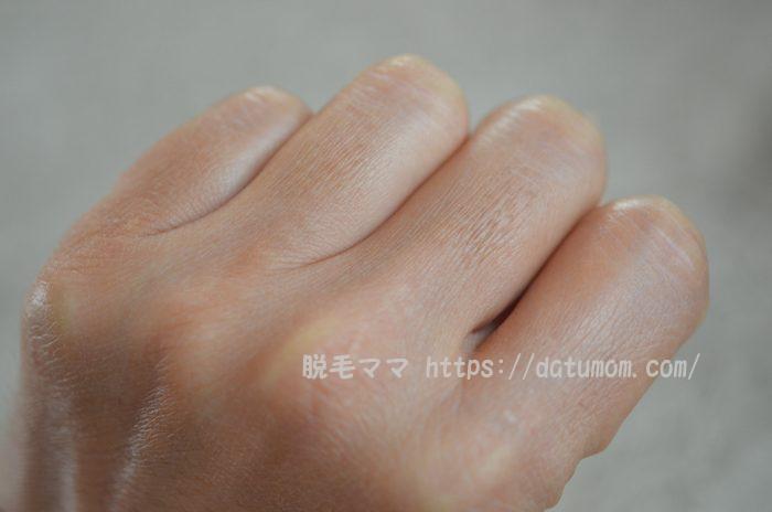 ケノン1回目使用後-手の指毛