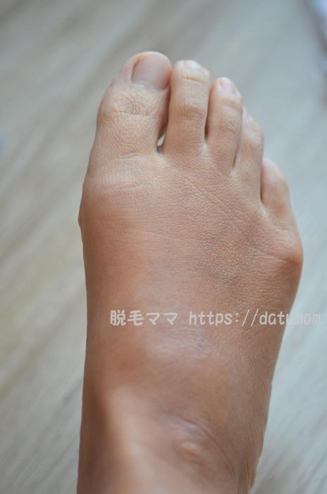 ケノン1回目使用後-足の指毛