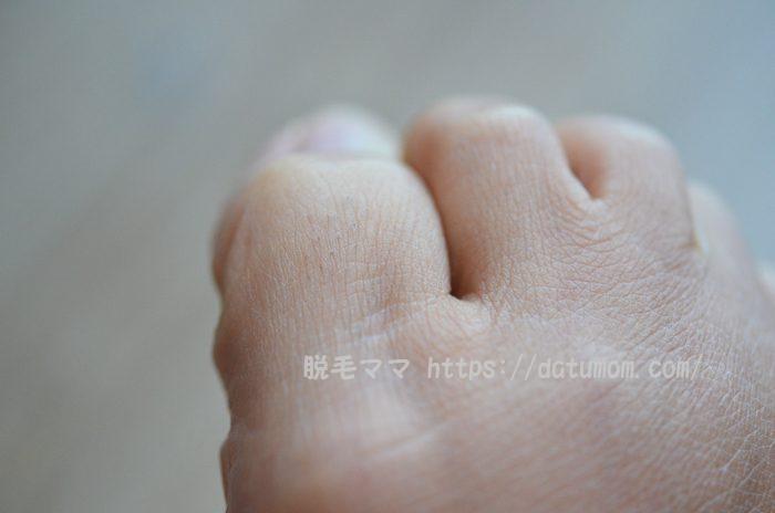 ケノン1回目使用後-足の指毛アップ