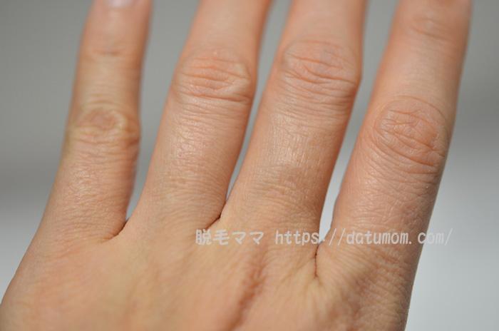 ケノン照射10日後の指毛(左手)