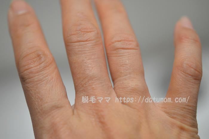 ケノン照射10日後の指毛(右手)