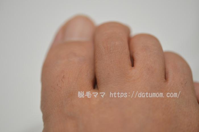 ケノン照射10日後の足の指毛(右足)