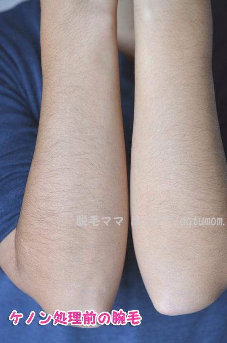 両腕、ひじ下のムダ毛(照射前)