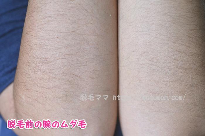 女性、両ひじ下のムダ毛