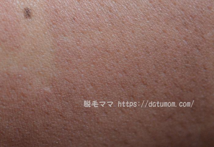 皮膚の炎症、ヒリヒリと痛い