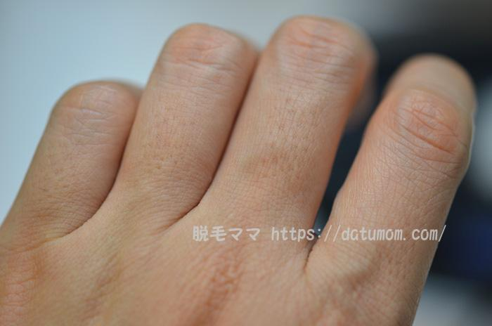 手の指毛(右手)ケノン3回目