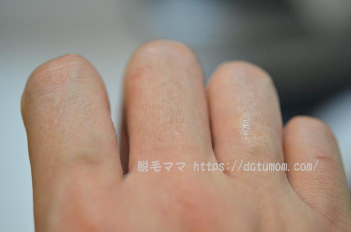 手の指毛(左手)ケノン3回目