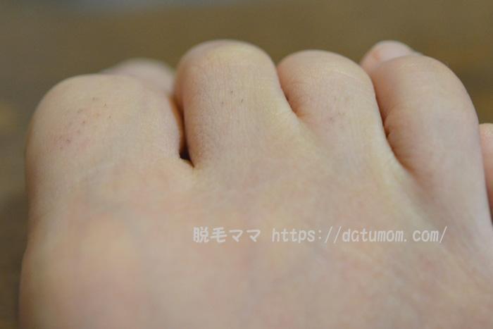 足の指毛(右足)ケノン照射前