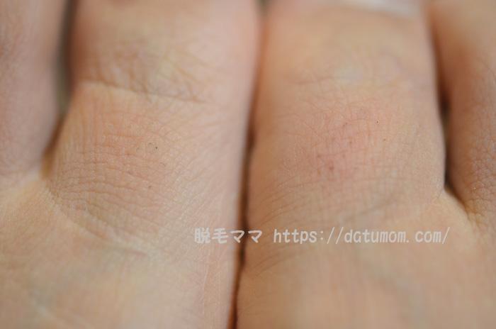 両足の指毛、少し赤みが出ました