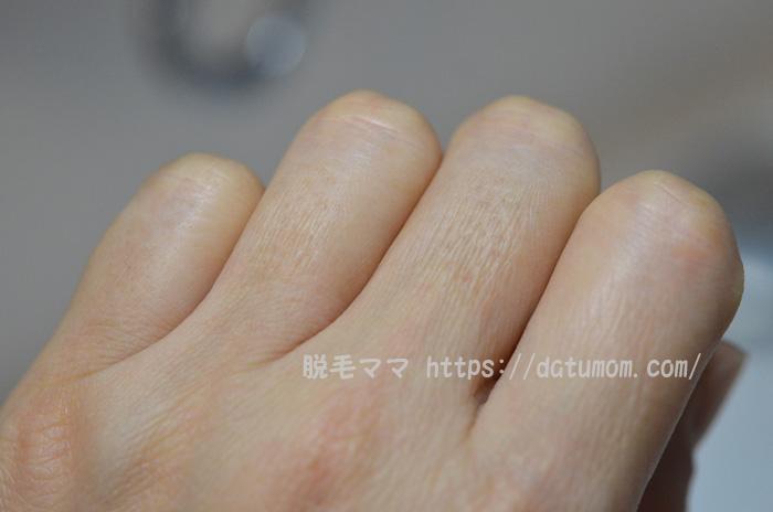 手足の指毛、ケノン照射5回目