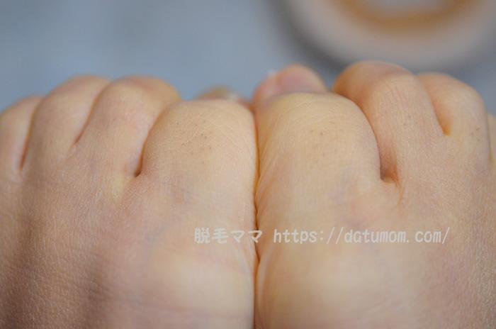 ケノン照射5回目、足の指毛