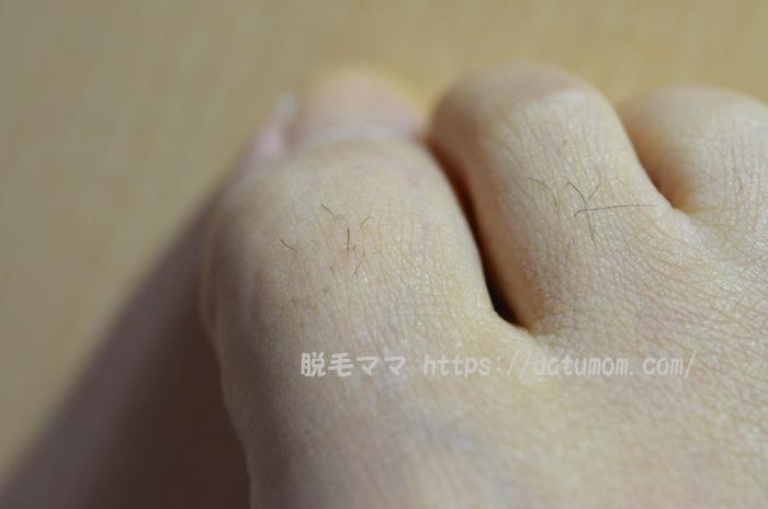足の指毛も生えてきた!